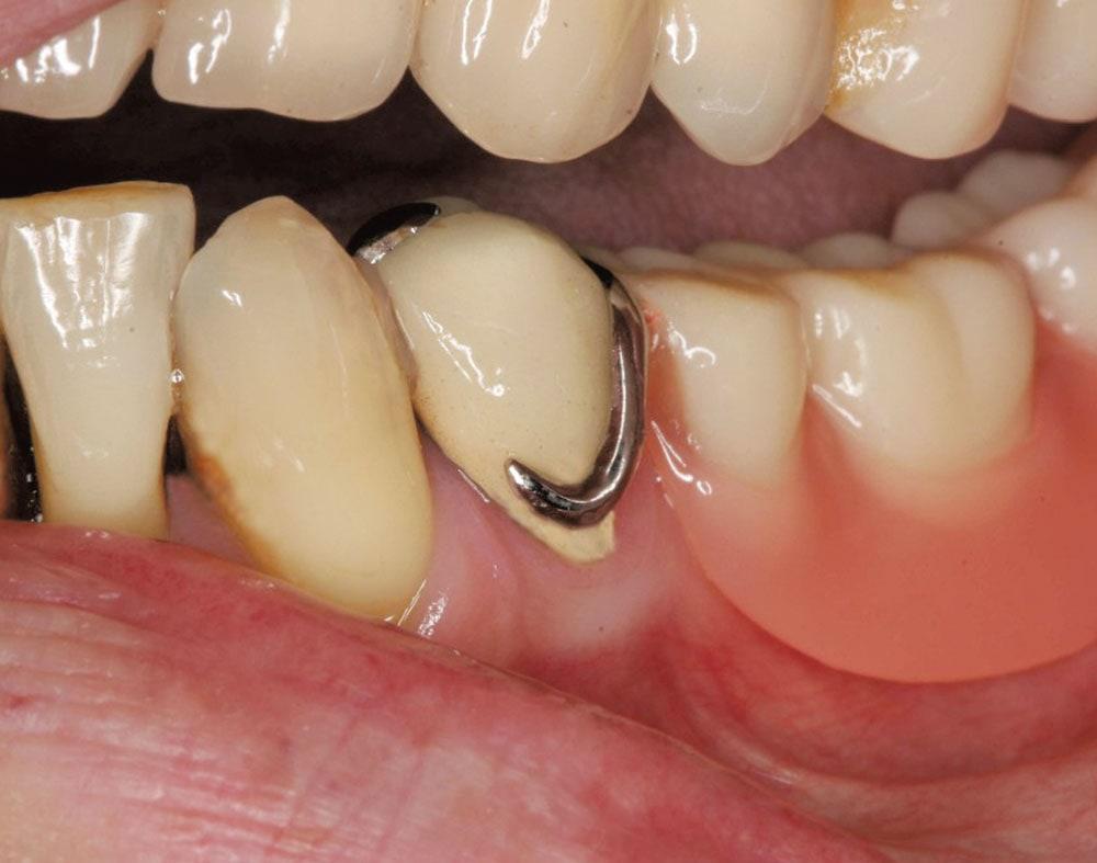 Metallklammern der Modellgussprothese sind im Mund deutlich sichtbar.